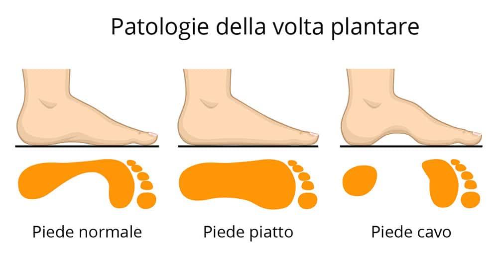 patologie pianta del piede