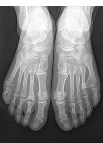 Esadattilia del piede destro terza foto pre intervento