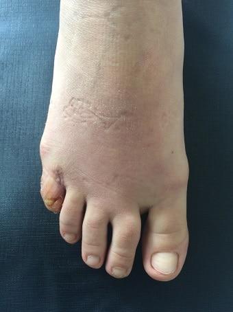 Esadattilia del piede destro prima foto dopo l'intervento