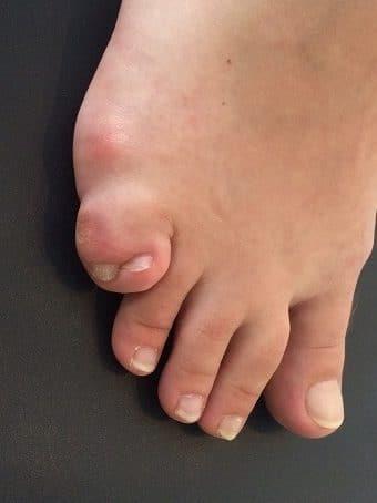 Esadattilia del piede destro seconda foto pre intervento