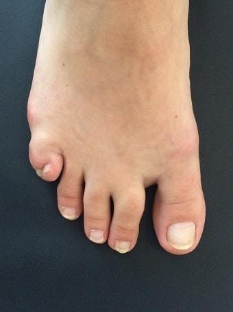 Esadattilia del piede destro prima foto pre intervento