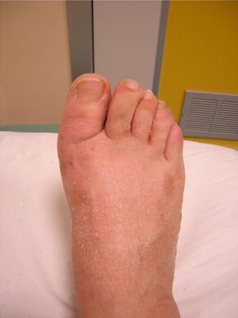 Alluce valgo moderato piede destro prima foto dopo l'intervento
