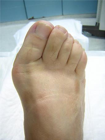 Alluce valgo moderato piede destro prima foto pre intervento