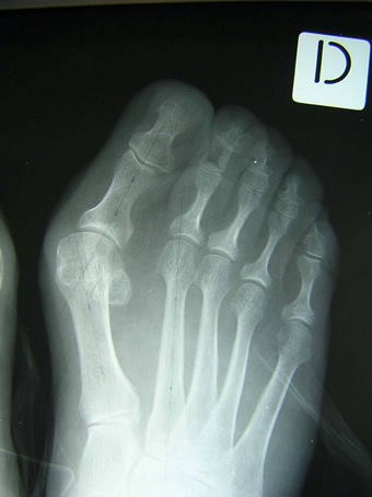 Alluce valgo moderato piede destro seconda foto pre intervento