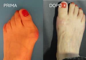 Foto prima e dopo - 10° Caso Clinico