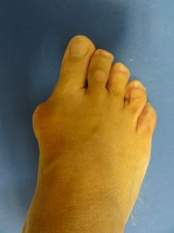 Alluce valgo, metatarsalgia centrale, 2° dito in griffe piede destro. prima foto pre intervento