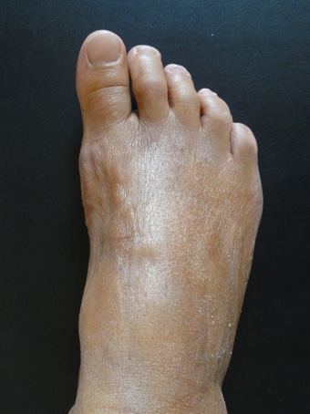 Alluce valgo, metatarsalgia centrale, 2° dito in griffe piede destro. prima foto dopo l'intervento