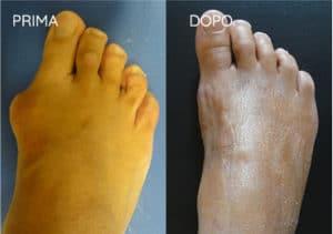 Foto prima e dopo - 11° Caso Clinico