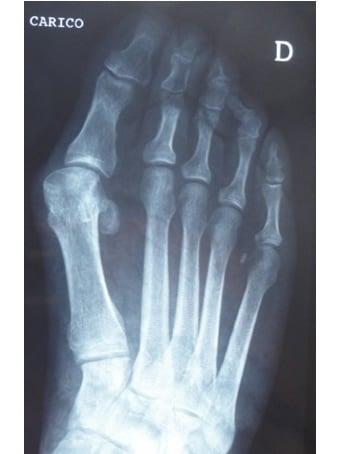 Alluce valgo, 2° dito elevato, 4° dito sottoposto piede destro. seconda foto pre intervento