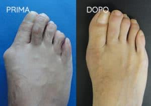 Foto prima e dopo - 12° Caso Clinico