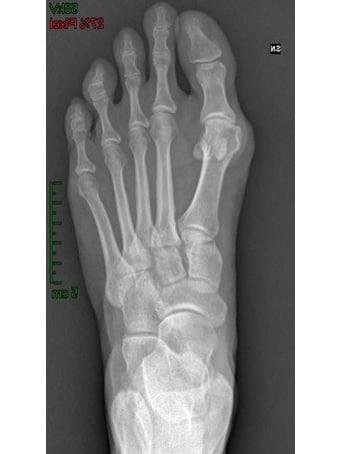 Alluce valgo, metatarsalgia centrale piede sinistro. seconda foto pre intervento