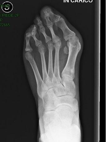 Alluce valgo, 2° dito in cross, 3°4°5° dito in griffe piede sinistro. seconda foto pre intervento
