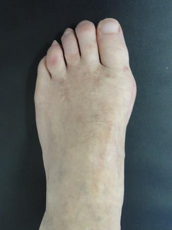 Alluce valgo, 2° dito in cross, 3°4°5° dito in griffe piede sinistro. prima foto dopo l'intervento