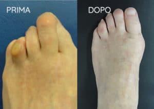 Foto prima e dopo - 14° Caso Clinico