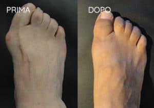 Foto prima e dopo - 16° Caso Clinico