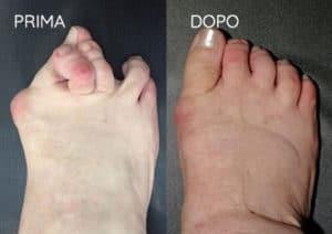 Foto prima e dopo - 18° Caso clinico