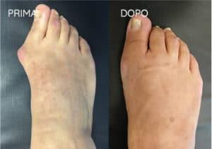Foto prima e dopo - 19° Caso clinico