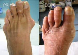 Foto prima e dopo - 2° Caso Clinico