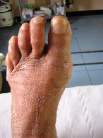 Alluce valgo moderato con metatarsalgia dei raggi centrali piede sinistro prima foto dopo l'intervento