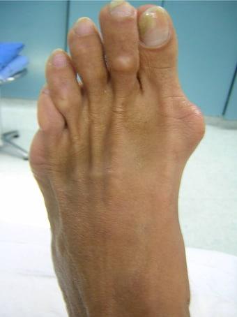 Alluce valgo moderato con metatarsalgia dei raggi centrali piede sinistro prima foto pre intervento