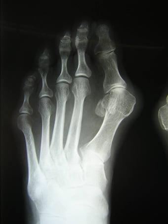 Alluce valgo moderato con metatarsalgia dei raggi centrali piede sinistro seconda foto pre intervento