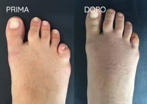 Foto prima e dopo - 20° Caso clinico