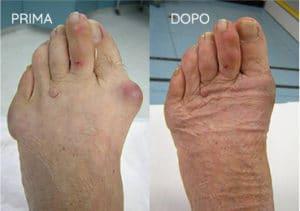 Foto prima e dopo - 3° Caso Clinico