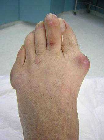Alluce valgo severo e 5° dito varo piede sinistro prima foto pre intervento
