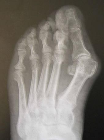 Alluce valgo severo e 5° dito varo piede sinistro seconda foto pre intervento