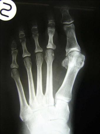 Alluce valgo, metatarsalgia, 2° dito a martello piede sinistro seconda foto pre intervento