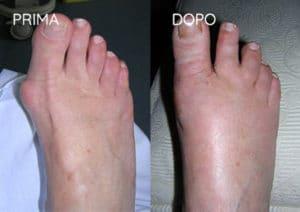 Foto prima e dopo - 6° Caso Clinico