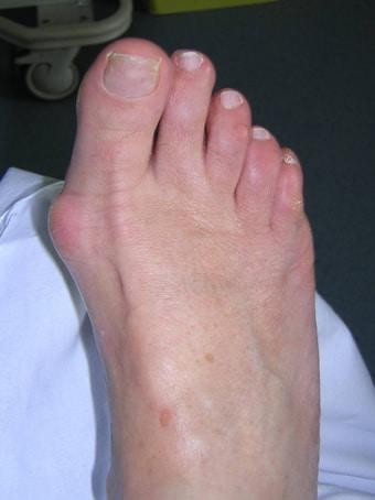 Alluce valgo con borsite alla testa del 1° metatarso piede destro prima foto pre intervento