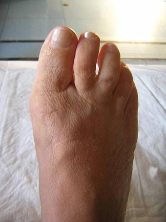 Alluce valgo con 2° dito in cross piede destro prima foto dopo l'intervento