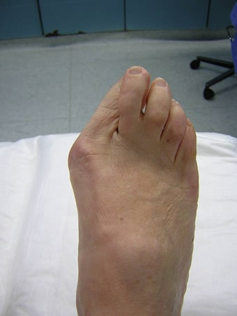 Alluce valgo con 2° dito in cross piede destro prima foto pre intervento