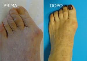 Foto prima e dopo - 8° Caso Clinico
