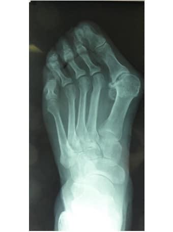 Alluce valgo artrosico, metatarsalgia centrale piede sinistro seconda foto pre intervento