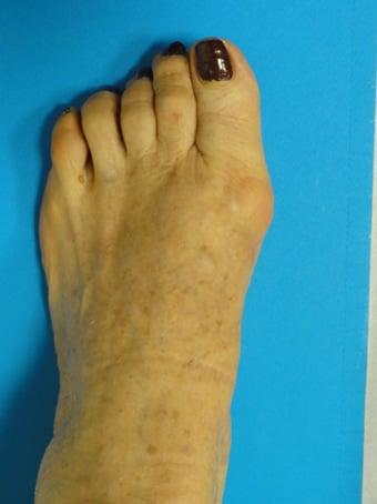 Alluce valgo artrosico, metatarsalgia centrale piede sinistro prima foto dopo l'intervento