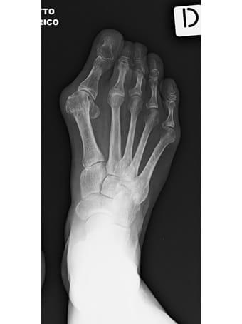 Alluce valgo, metatarsalgia centrale, 2°3°4° dito in griffe, 5° dito varo piede destro seconda foto pre intervento