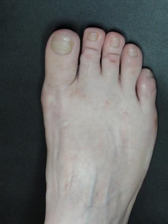 Alluce valgo, metatarsalgia centrale, 2°3°4° dito in griffe, 5° dito varo piede destro prima foto dopo l'intervento