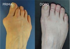 Foto prima e dopo - 9° Caso Clinico