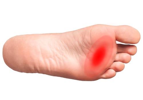 dolore plantare in corrispondenza delle dita del piede