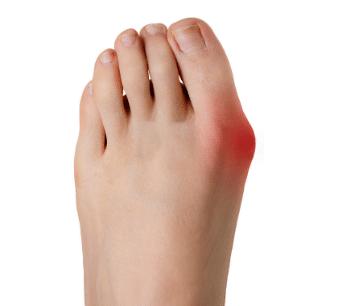 dolore laterale alluce valgo