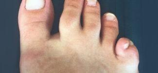 Polidattilia piede
