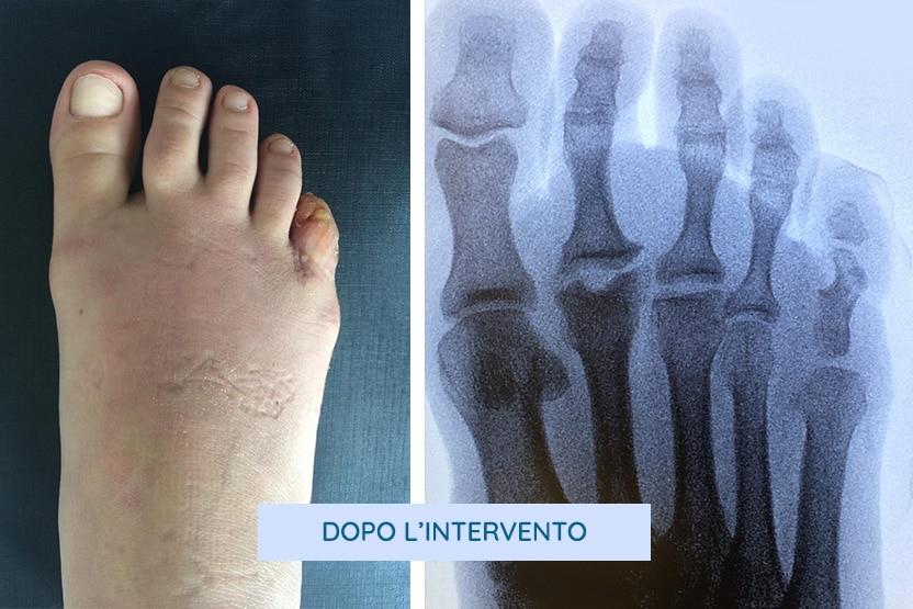 foto e radiografia post intervento per polidattilia del quinto dito del piede