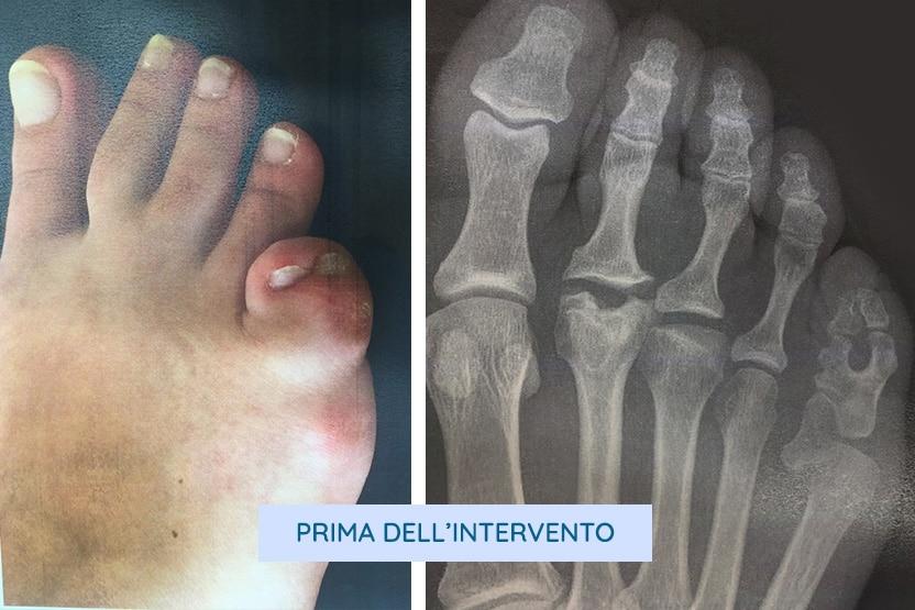 Polidattilia del quinto dito del piede foto e radiografia