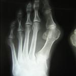 radiografia di un alluce valgo