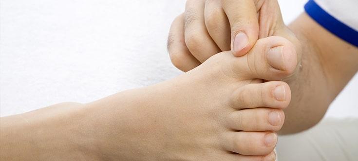Sesamoidite del piede